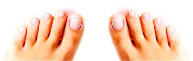 Лак для лечения грибка ногтей